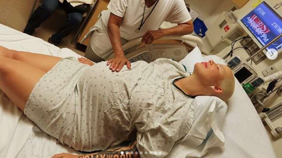 Pilih Sedot Lemak usai Melahirkan, Ini Penampilan Lama Amber Rose