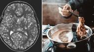 Hii! 5 Kisah Mengerikan Cacing Bersarang di Tubuh karena Makan Daging Babi