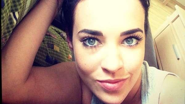Ini Stephanie Davis, Aktris yang Ngaku Dibully karena Jidatnya