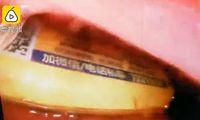 Iseng Saat Mabuk Telan Korek Api, Perut Pria di China Ini Hampir Meledak