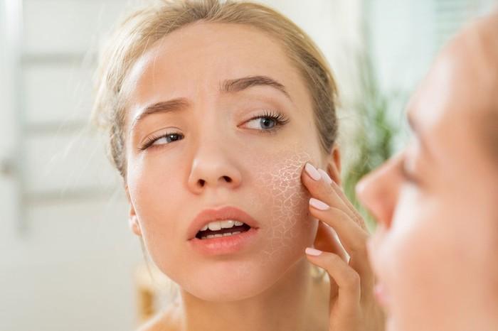 10 Cara Mengatasi Kulit Wajah Kering yang Ganggu Penampilan/Foto: kulit wajah kering