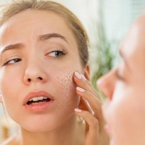10 Cara Mengatasi Kulit Wajah Kering yang Ganggu Penampilan