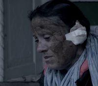 Wajah Galina rusak karena dibakar oleh sang suami