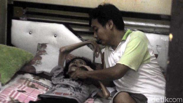 Idap Kanker Paru, Tubuh IRT Sukabumi Ini Kering Kerontang
