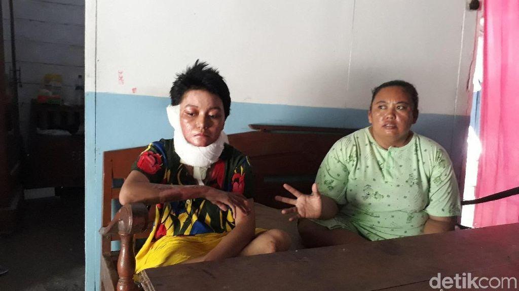 Begini Kondisi Istri yang Dibakar Suami di Surabaya Oktober Lalu