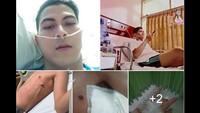 Viral Cerita Abang None, Paru-parunya Kolaps karena Rokok