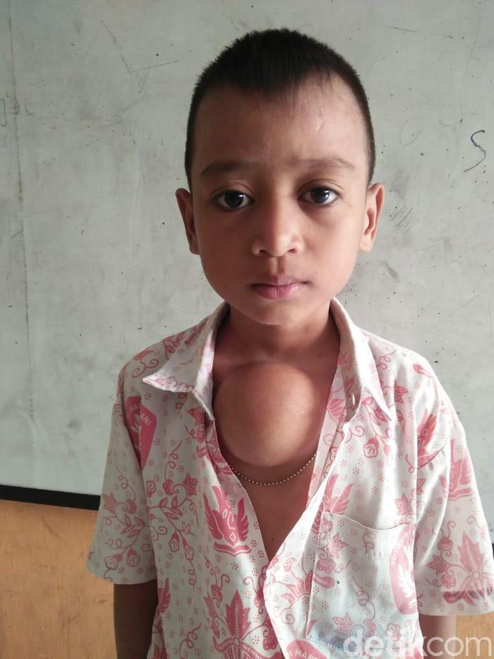 Foto: Bocah Suman yang memiliki benjolan segede apel di dada (Opik-detikcom)