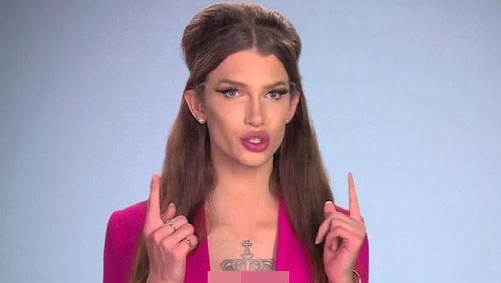Ekstrem! Transgender Niat Pasang Implan Payudara di Kepala Demi Mirip Boneka