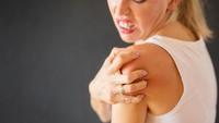 Berbagai Penyebab Alergi Kulit dan Cara Menanganinya