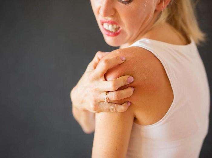 Foto: iStockBerbagai Penyebab Alergi Kulit dan Cara Menanganinya/