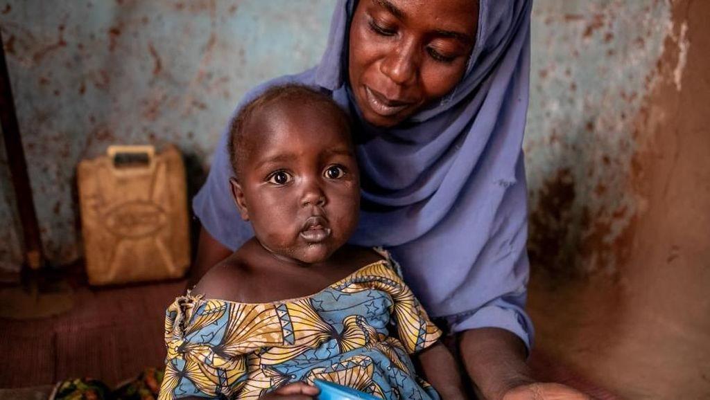 Upaya Mengobati Anak-anak Positif HIV di Uganda