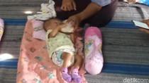 Pak Bupati, Bayi Tanpa Anus di Madiun Ini Tak Punya Biaya untuk Operasi