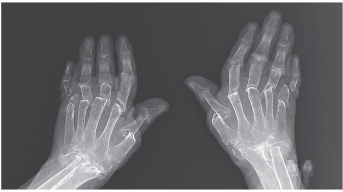 foto X-Ray yang menunjukkan jemari nenek ini menekuk ke samping. Foto: New England Journal of Medicine