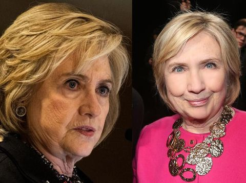 Foto before-after Hillary Clinton yang diduga botox & filler
