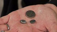 Dikira Permen, Balita Ini Hampir Meninggal Setelah Telan 20 Baterai Koin