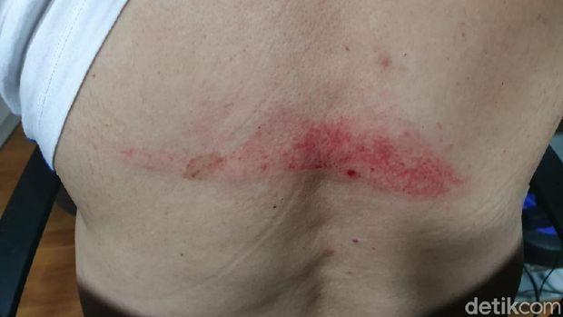 Bintik merah di punggung Setya Novanto