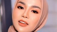Kisah Miris Medina Zein, Dulu Hijabers Inspiratif Kini Positif Narkoba