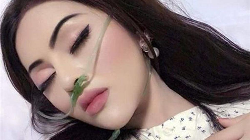 Viral Influencer Pakai Makeup Tebal Saat Dirawat di Rumah Sakit Dikritik