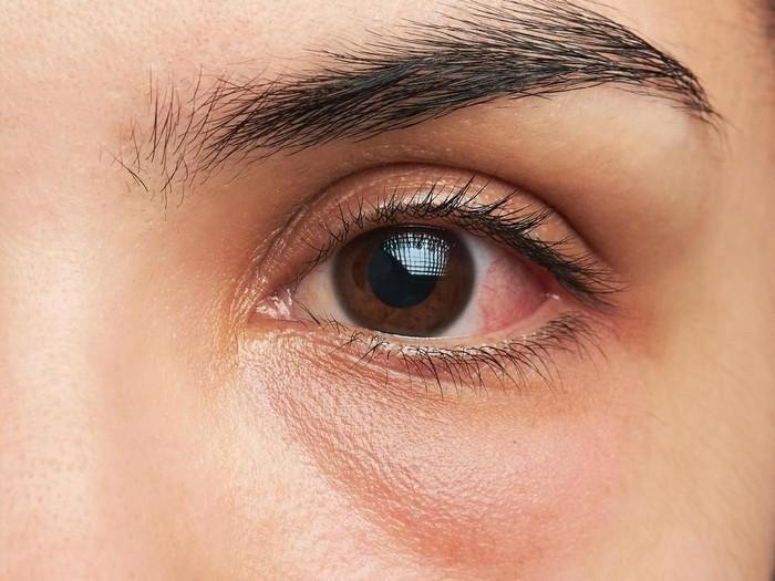 Foto: iStock/5 Obat Sakit Mata Alami Serta Penyebabnya