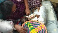Meilani Alfira Balita Usia 2,8 Tahun Penderita Gizi Buruk Tubuhnya Sangat Kurus