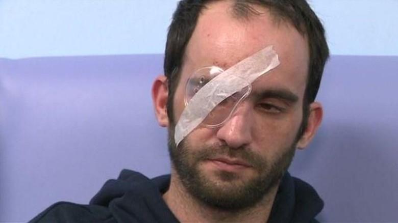 Marc Toone buta sebelah setelah dilempar telur Foto: Visordown