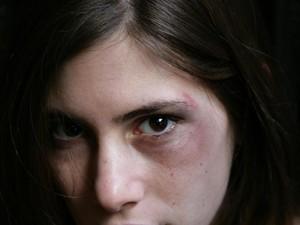 Bikin Tutorial Makeup Tutupi Tanda KDRT, Artis TikTok Jadi Kontroversi