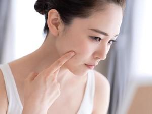 Alasan Kamu Tetap Jerawatan Walau Setop Pakai Makeup Selama PSBB