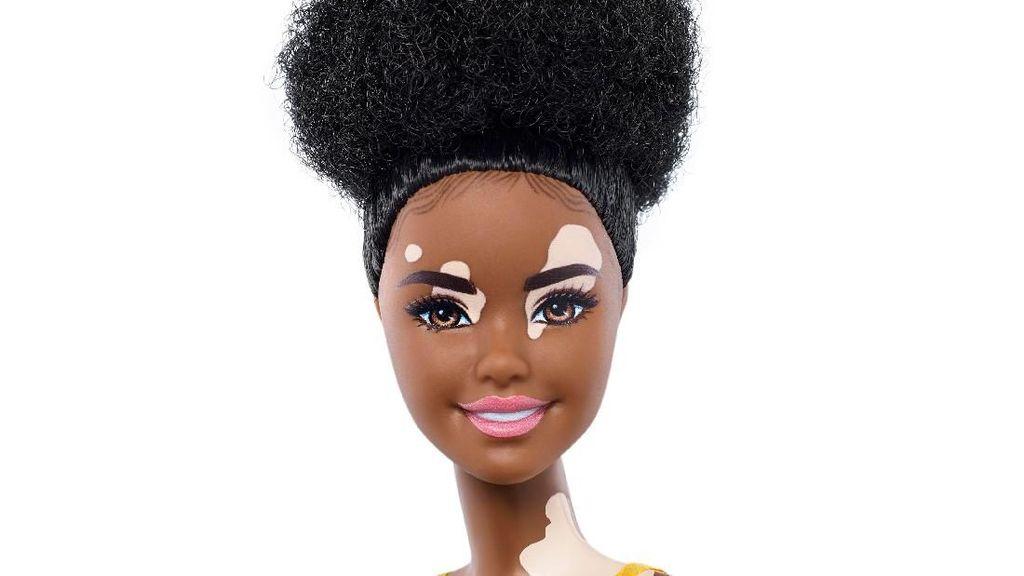 Merayakan Keragaman, Mattel Rilis Barbie Vitiligo hingga Tanpa Kaki
