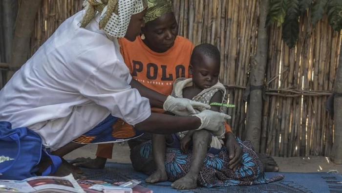 Wabah virus corona sebelumnya disebut penyakit misterius mirip pneumonia. Diseluruh dunia, pneumonia merenggut lebih banyak nyawa anak-anak daripada infeksi lainnya.