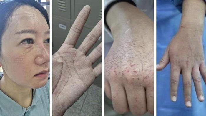 Perawat yang luka-luka tangani virus corona