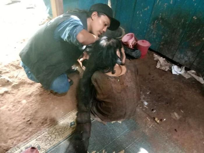 Potongan rambut gimbal Sukiyah (50) yang sempat jadi sarang tikus dan kecoak batal dikubur. Rambut gimbal itu rencananya bakal disimpan setelah dibersihkan.
