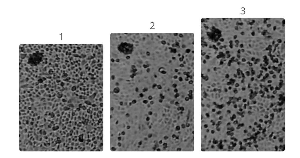 foto mikroskopik virus corona