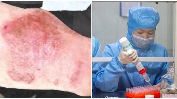 tangan bengkak karena 12 jam bekerja di lab virus corona