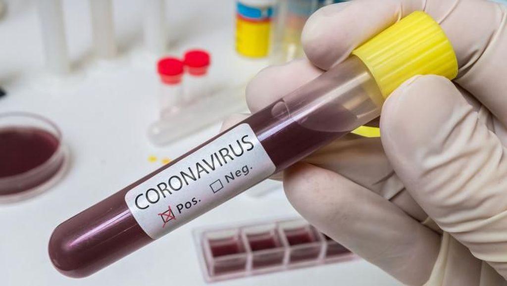 Kasus Pertama di Sub-Sahara Afrika: WN Italia di Nigeria Positif Virus Corona