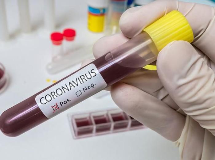 satu keluarga terserang virus corona setelah makan hot pot dan bbq bareng