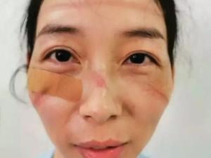 Kerja 24 Jam Tangani Virus Corona, Wajah Perawat di China Jadi Seperti Ini