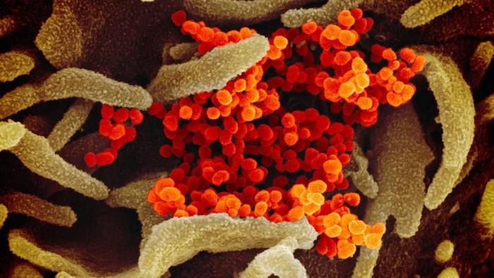 Virus Corona dilihat dari mikroskop