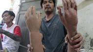 Menengok Bengkel Difabel Pengrajin Tangan-Kaki Palsu di Bandung