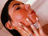 Transformasi Delaney Rose setelah mengalami luka bakar di wajah