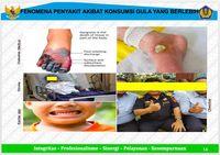 Waspada! Teh Kemasan Sampai Soda Lebih Bahaya dari Rokok
