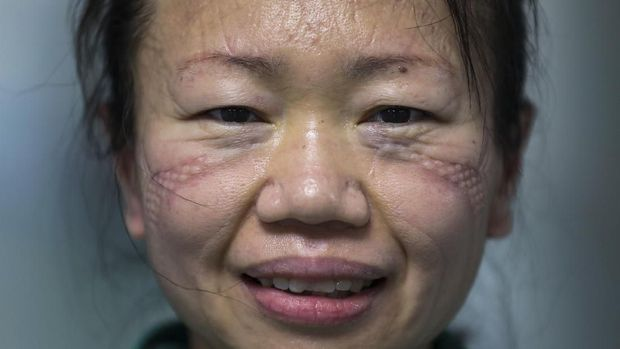 In this Sunday, Feb. 16, 2020, photo, scar marks made from wearing protective mask leaves on a face of a nurse at Jinyintan Hospital designated for new coronavirus infected patients, in Wuhan in central China's Hubei province. China reported thousands new virus cases and more deaths in its update Tuesday, Feb. 18 on a disease outbreak that has caused milder illness in most people, an assessment that promoted guarded optimism from global health authorities. (Chinatopix via AP)