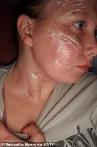 Duh! Wajah Wanita Ini Terbakar Gara-gara Kena Api Teppanyaki