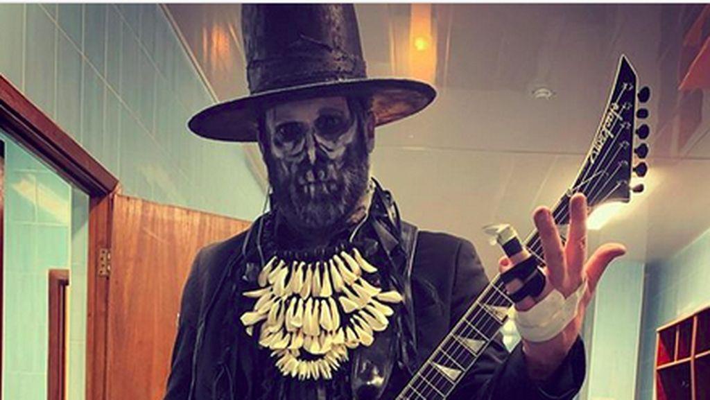 Gokil! Tanggan Patah, Gitaris Limp Bizkit Sangar Ngeband dengan 3 Jari