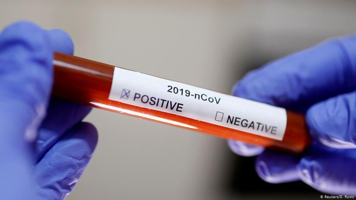 Korea Utara Dituduh Karantina Ratusan Orang Asing Guna Hindari Sebaran Virus COVID-19