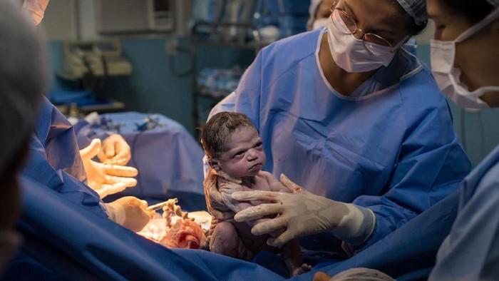 Viral Foto Bayi Langsung Pasang Muka Cemberut Saat Baru ...