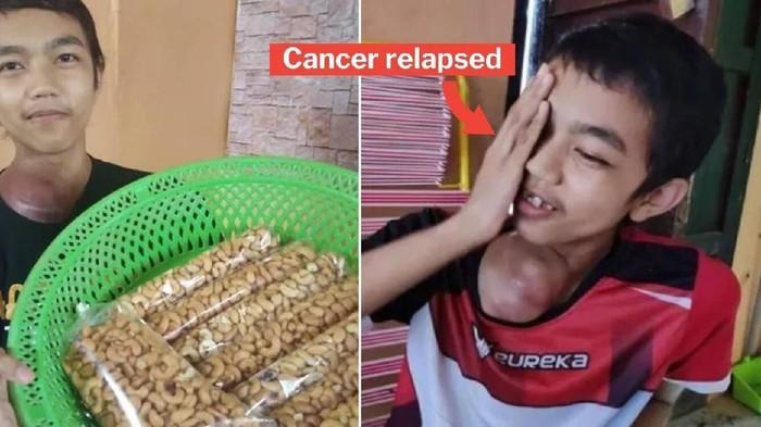 jual kacang untuk berobat kanker