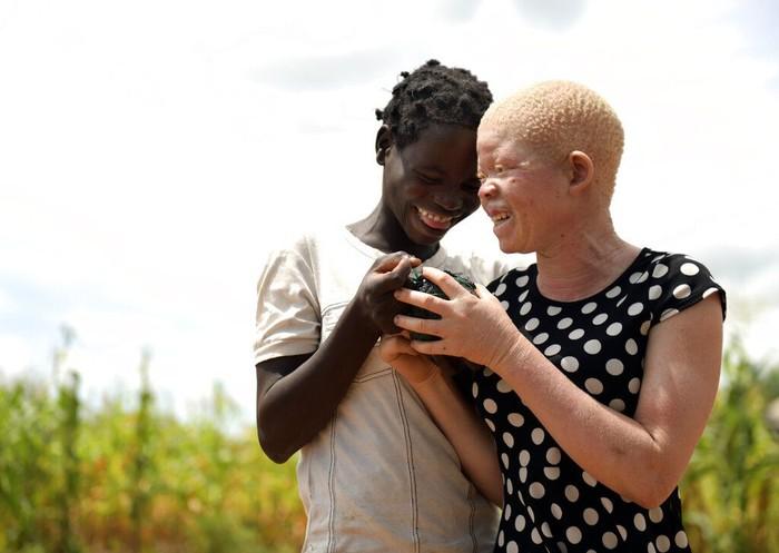 Di beberapa negara Afrika orang albino kerap dianggap punya kekuatan magis. Kepercayaan itu membuat orang albino diculik dan diburu demi diambil bagian tubuhnya.