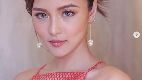 Kim Chiu, Aktris Filipina yang Selamat Usai Dihujani Tembakan