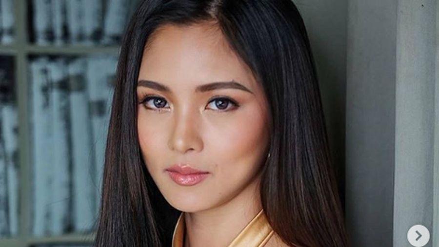 Kim Chiu, aktris Filipina yang mobilnya dihujani tembakan.