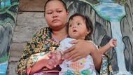 Sedih, Tangan Bayi 11 Bulan Asal Sragen Ini Terancam Diamputasi